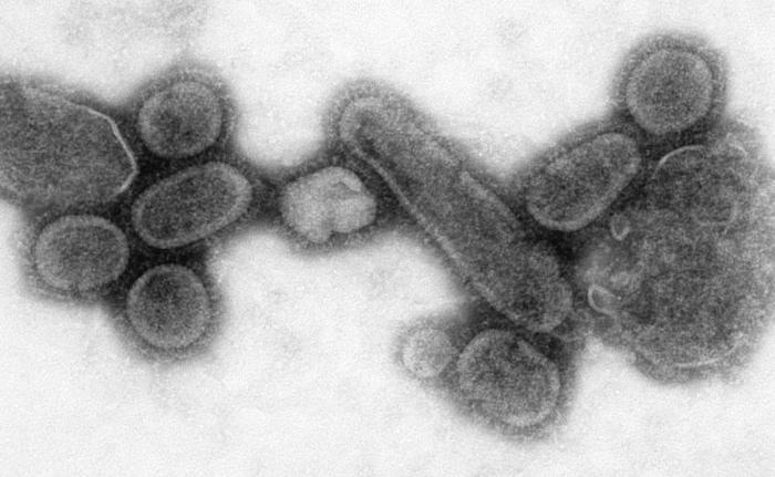 Virionen des rekonstruierten Virus der Spanischen Grippe - Foto: Public Health Image Library, Cynthia Goldsmith